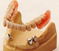 茶筒の仕組みで固定するコーヌスクローネ義歯