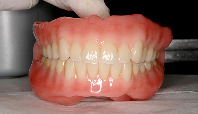 「超精密フルオーダーメイドデンチャー」BPS義歯