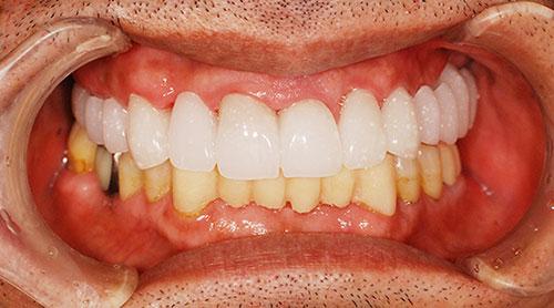 仮歯を使ったイメージのすり合わせ