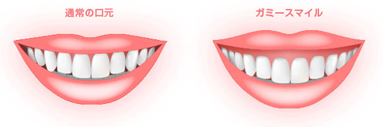 笑うと歯茎が見えるガミースマイルの改善