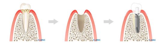 1日で歯が入る「即時荷重インプラント」