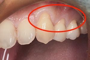 見た目を修復する歯肉移植手術