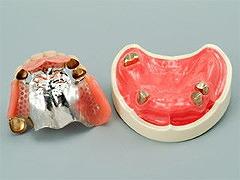 三次元構成義歯